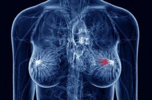 Καρκίνος μαστού: πρόληψη
